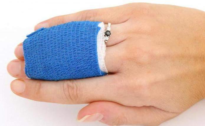 что делать в домашних условиях при вывихе пальца на руке