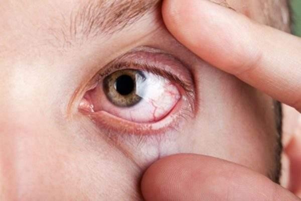 эффективное средство от отеков и темных кругов под глазами