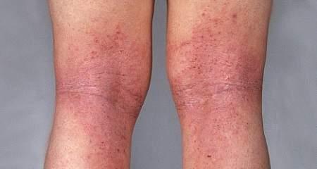 красные пятна на ногах жжение зуд отек без температуры