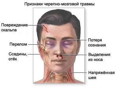 первая помощь при ушибах и закрытых травмах