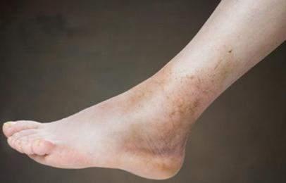 почему отекли ноги внизу ступни сильно опухли и сильно болит