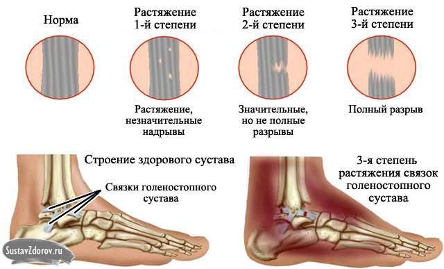 повреждение голеностопного сустава вывих или разрыв связок