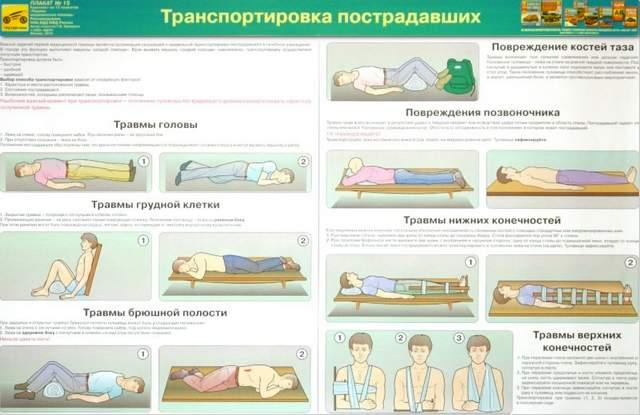 в каком положении следует транспортировать пострадавшего с вывихом плеча