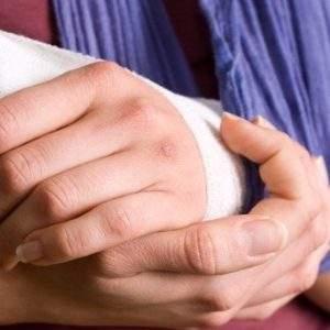 вывих большого пальца на руке что делать в домашних условиях