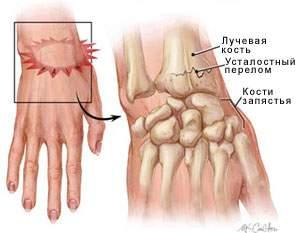 вывих головки локтевой кости в лучезапястном суставе