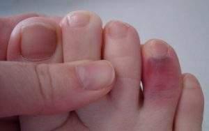 вывих первой фаланги большого пальца ноги лечение