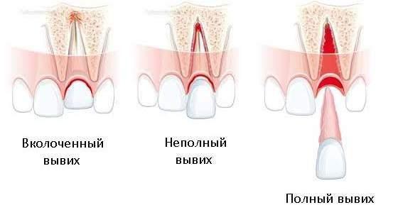 вывих зуба у ребенка в 2 года лечение