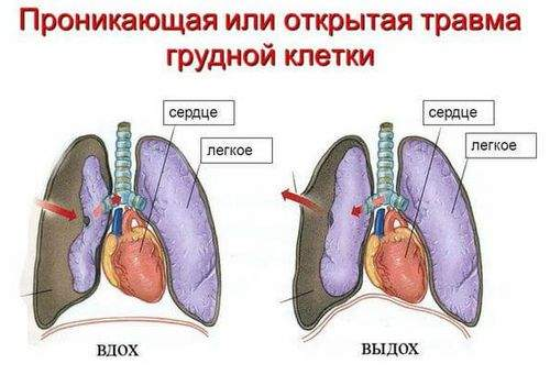 чем могут сопровождаться сотрясение или ушиб грудной клетки