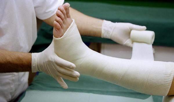 что делать при переломе ноги у человека
