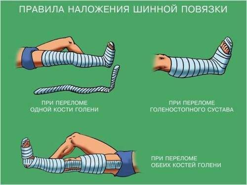 как наложить шину при переломе голеностопного сустава