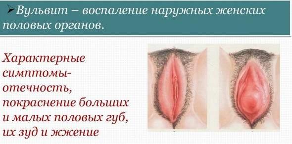 как снять отек с половых губ при молочнице