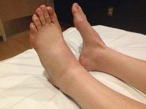 отек на левой ноге больше чем на правой