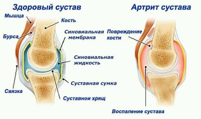 отек на ноге возле косточки с наружной стороны