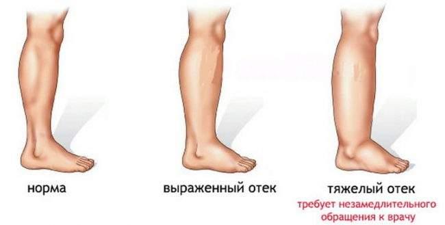 отекли ноги в щиколотке причина и что делать