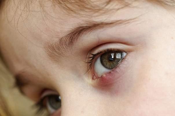 аллергический отек у ребенка как снять отек