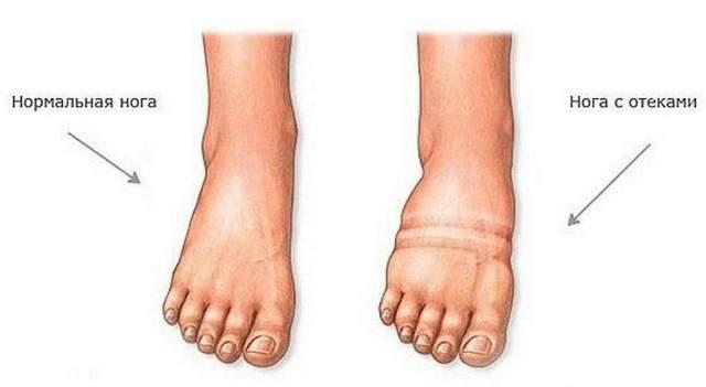гель от отеков ног при сердечной недостаточности