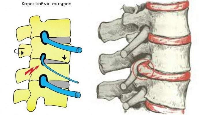 как снять отек нервного корешка в спине