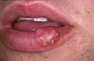 как снять отек от простуды на губе