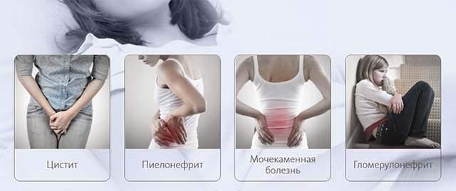 канефрон от отеков при беременности не помогает