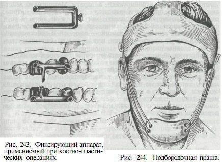классификация ортопедических аппаратов для лечения переломов челюстей
