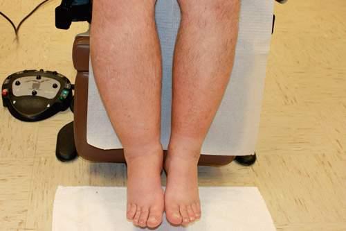массаж ног при отеках при сердечной недостаточности
