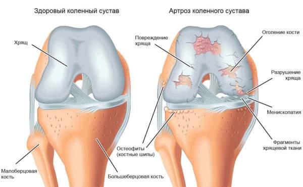мазь для снятия отека и воспаления суставов