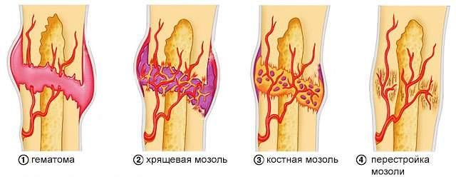 можно ли греть перелом ноги в гипсе