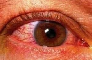 отек диска зрительного нерва неуточненный у ребенка