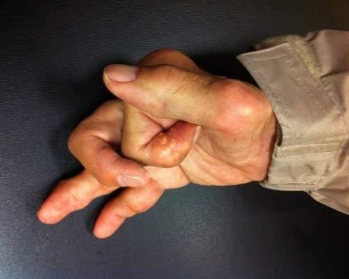 отек и гипертермия воспаление на кисти руки