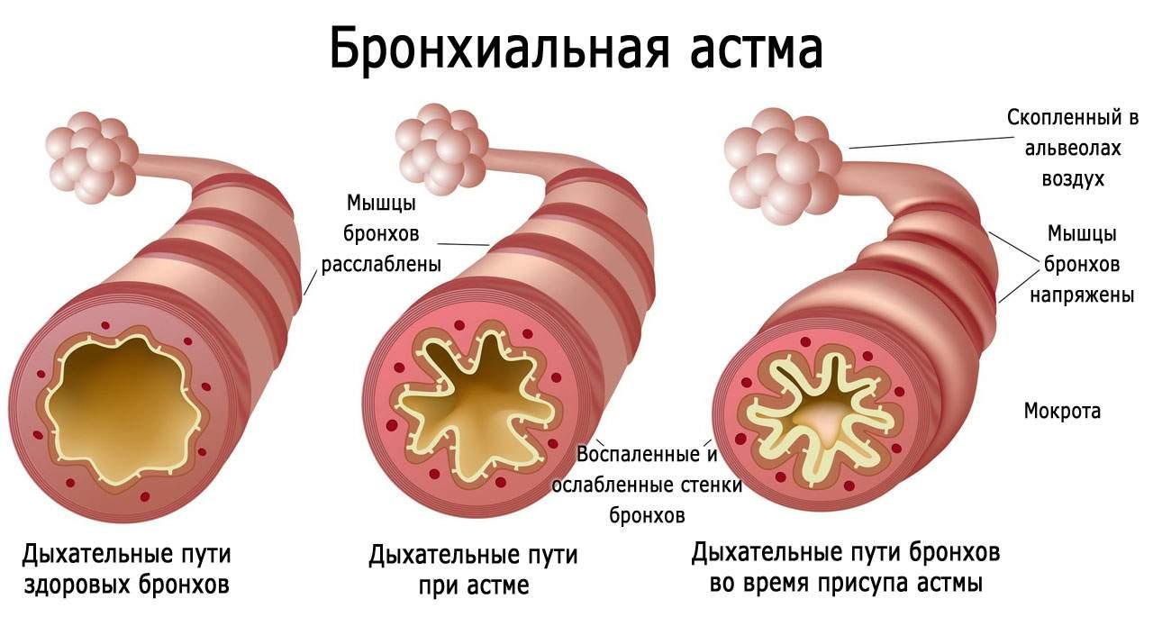 отек легких и сердечная астма дифференциальная диагностика