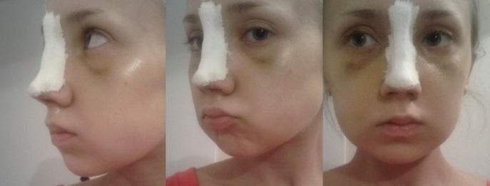 отек после ринопластики кончика носа по месяцам