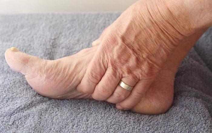 отекает голеностоп после перелома голеностопа что делать