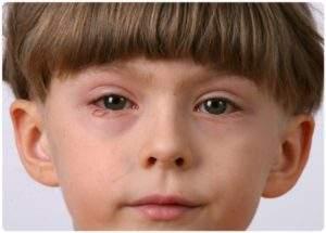 отекли глаза у ребенка трех лет что это может быть