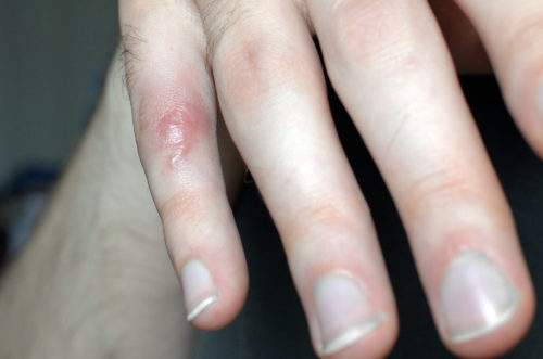 перелом фаланги мизинца на руке со смещением