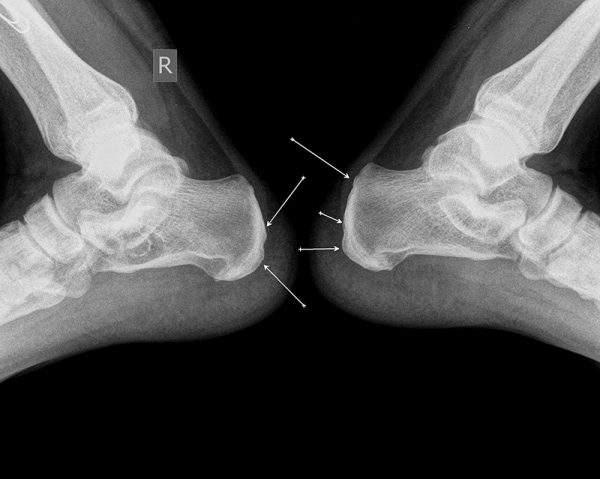 перелом пяточной кости без смещения у ребенка