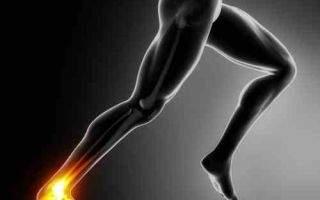 перелом пяточной кости со смещением степень тяжести