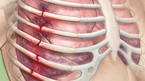 перелом ребра грудной клетки симптомы и лечение