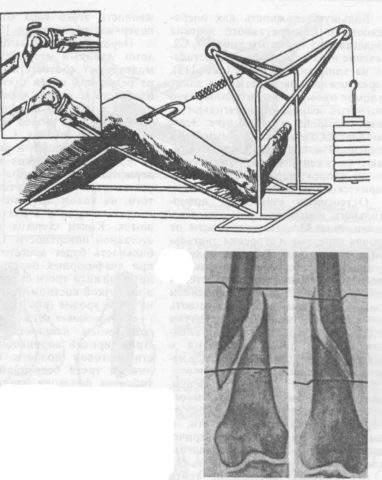 перелом шейки бедра на вытяжке до операции