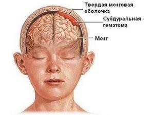шишка на голове у ребенка без ушиба