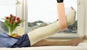 сколько держится отек ноги после снятия гипса