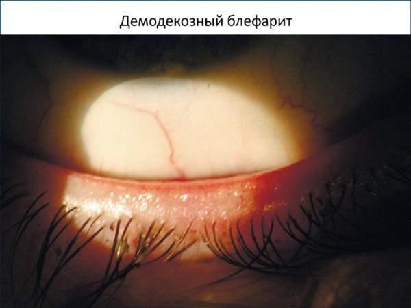воспаление и отек верхнего века глаза лечение