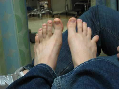 вывих пальца на ноге симптомы и лечение