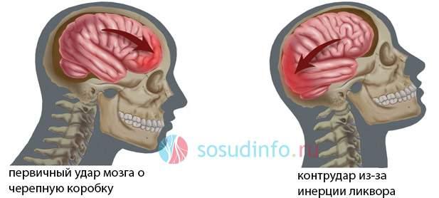 закрытая травма черепа с ушибом головного мозга