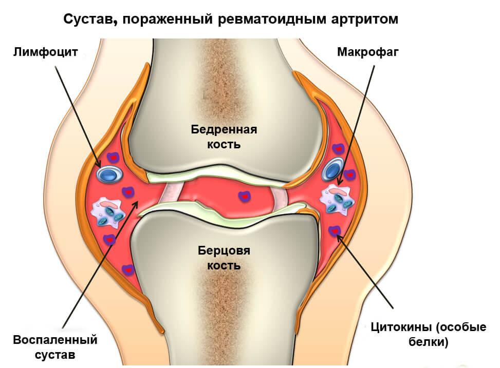 боль и отек в голеностопном суставе причины и лечение