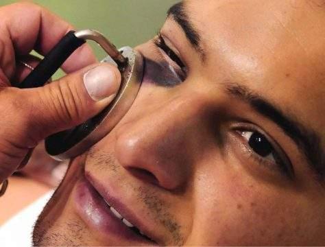 что делать чтобы быстро прошел ушиб под глазом