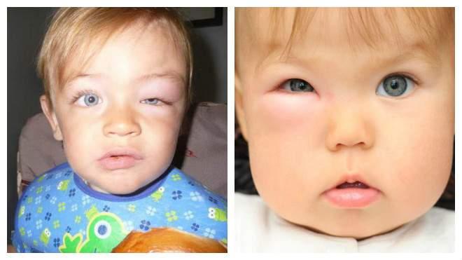 отек глаз от укуса комара у ребенка что делать