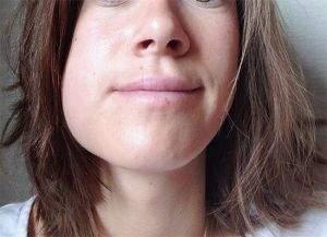 отек и боль в горле после удаления зуба мудрости