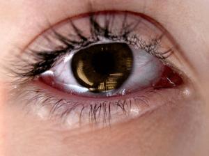 отек и покраснение вокруг глаз зуд лечение народными средствами