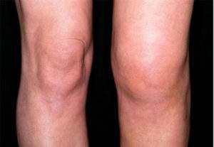 отек костного мозга большеберцовой кости коленного сустава что это