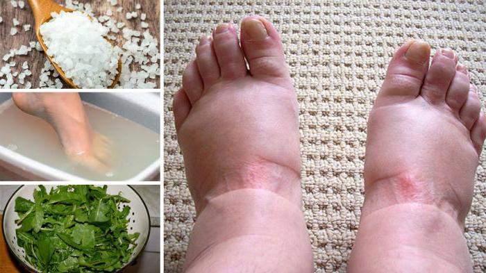 отек ноги ниже колена причины лечение медикаментозное и эффективное